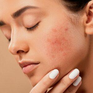 Ursachen für Hautprobleme